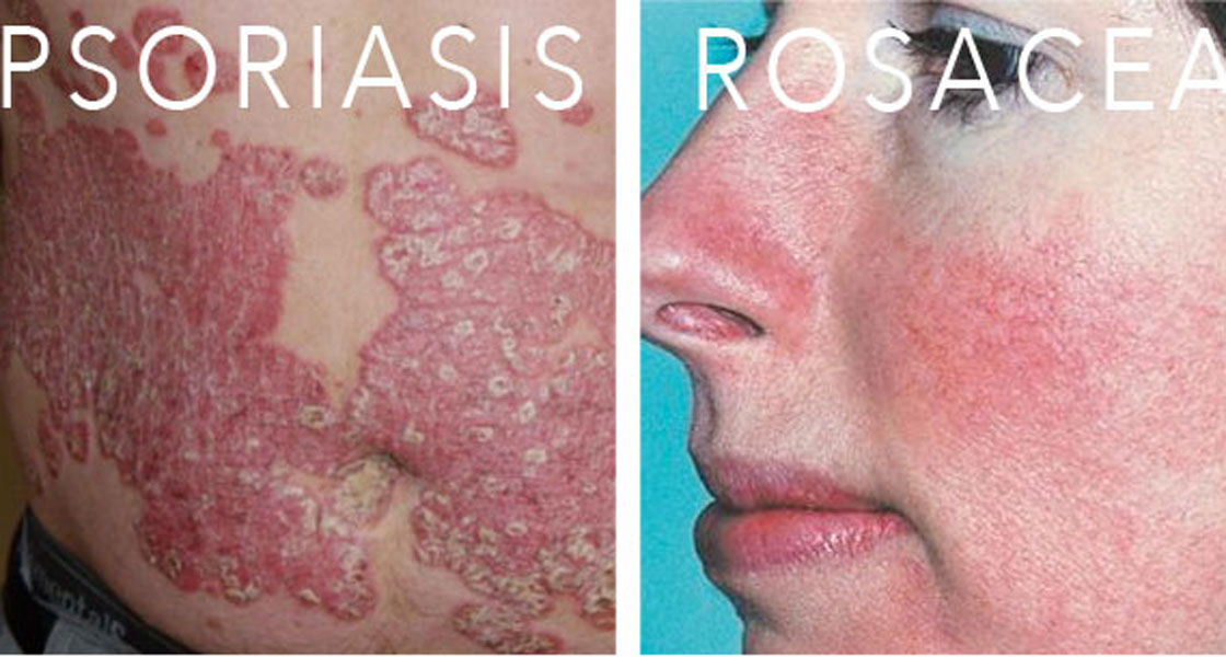 types-of-skin-conditions-psoriasis-melasma-eczema-rosacea-2