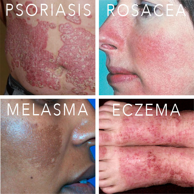 types-of-skin-conditions-psoriasis-melasma-eczema-rosacea