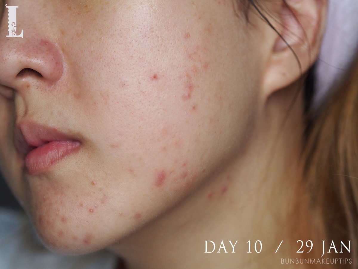 Acne-Treatment-Singapore-Clifford-Clinic-Day-10---29-Jan_1