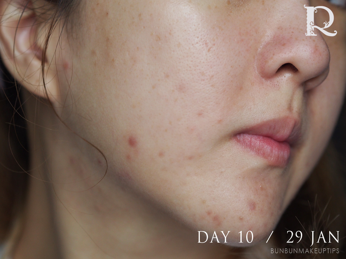 Acne-Treatment-Singapore-Clifford-Clinic-Day-10---29-Jan_3