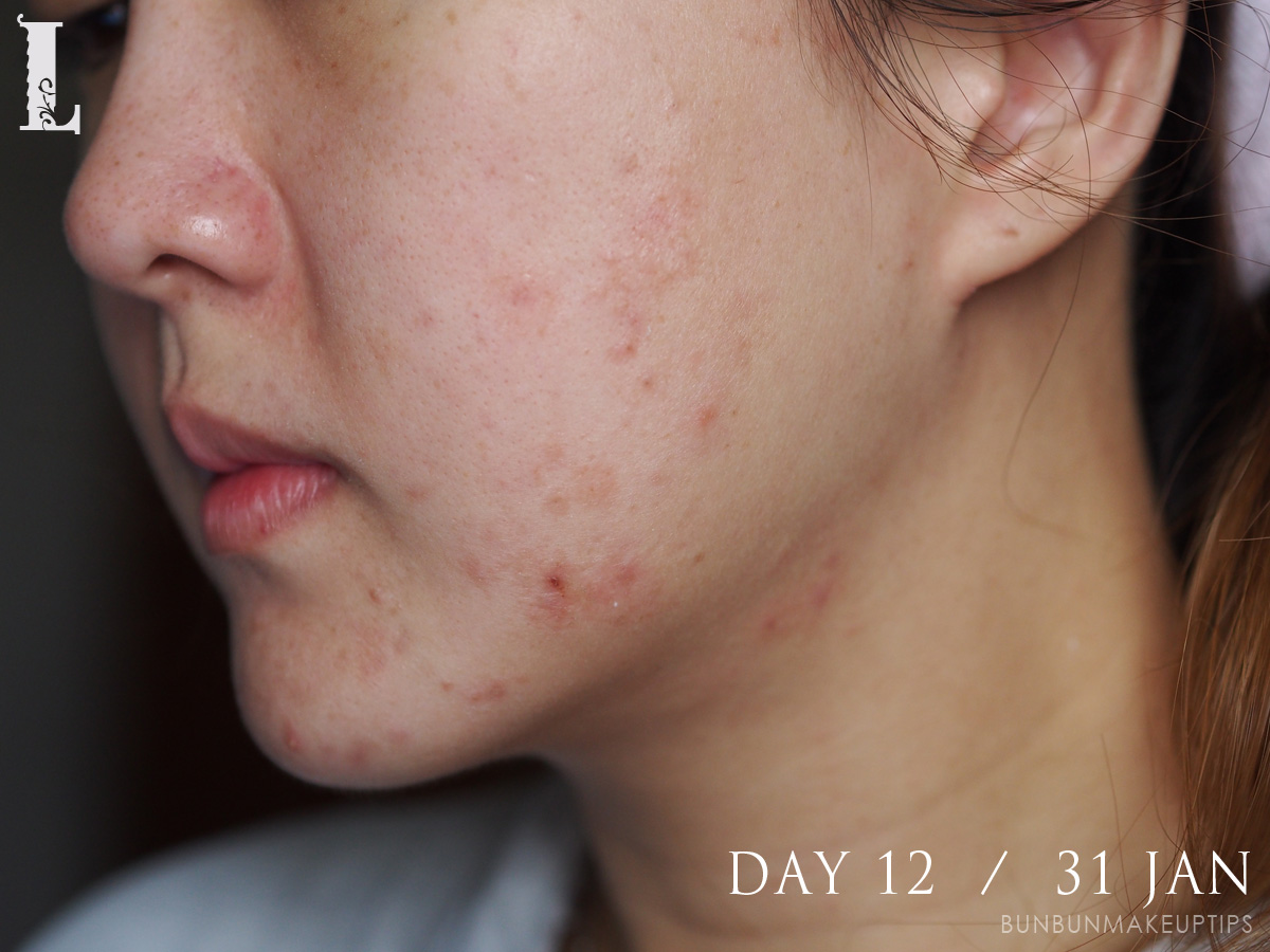 Acne-Treatment-Singapore-Clifford-Clinic-Day-12---31-Jan_1
