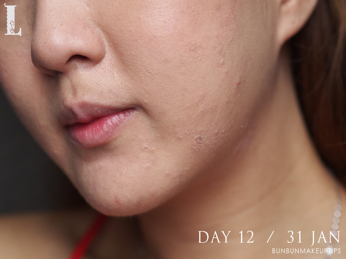 Acne-Treatment-Singapore-Clifford-Clinic-Day-12---31-Jan_2