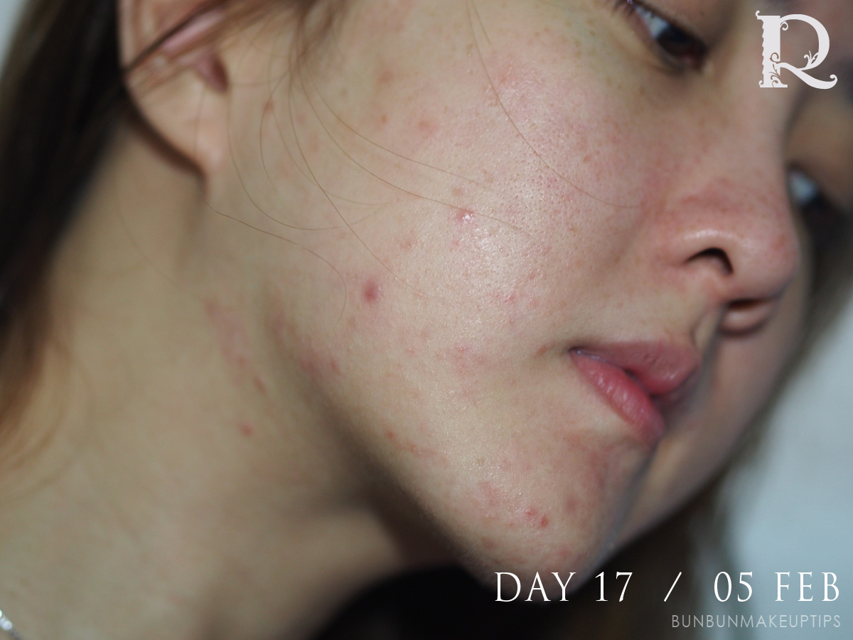 Acne-Treatment-Singapore-Clifford-Clinic-Day-17---05-Feb_1