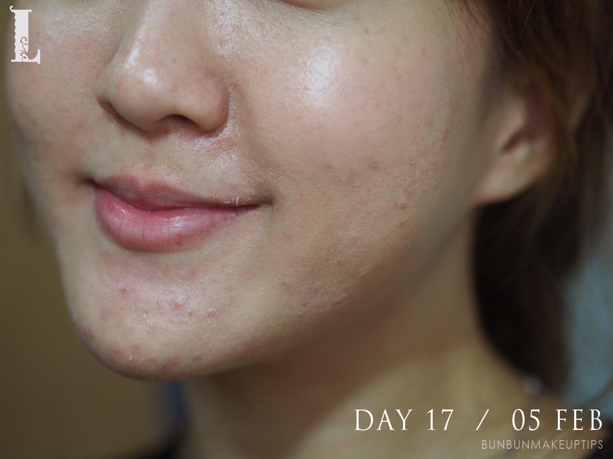 Acne-Treatment-Singapore-Clifford-Clinic-Day-17---05-Feb_2