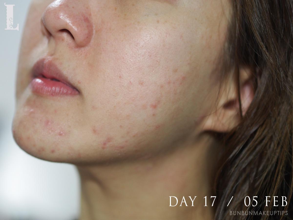 Acne-Treatment-Singapore-Clifford-Clinic-Day-17---05-Feb_3