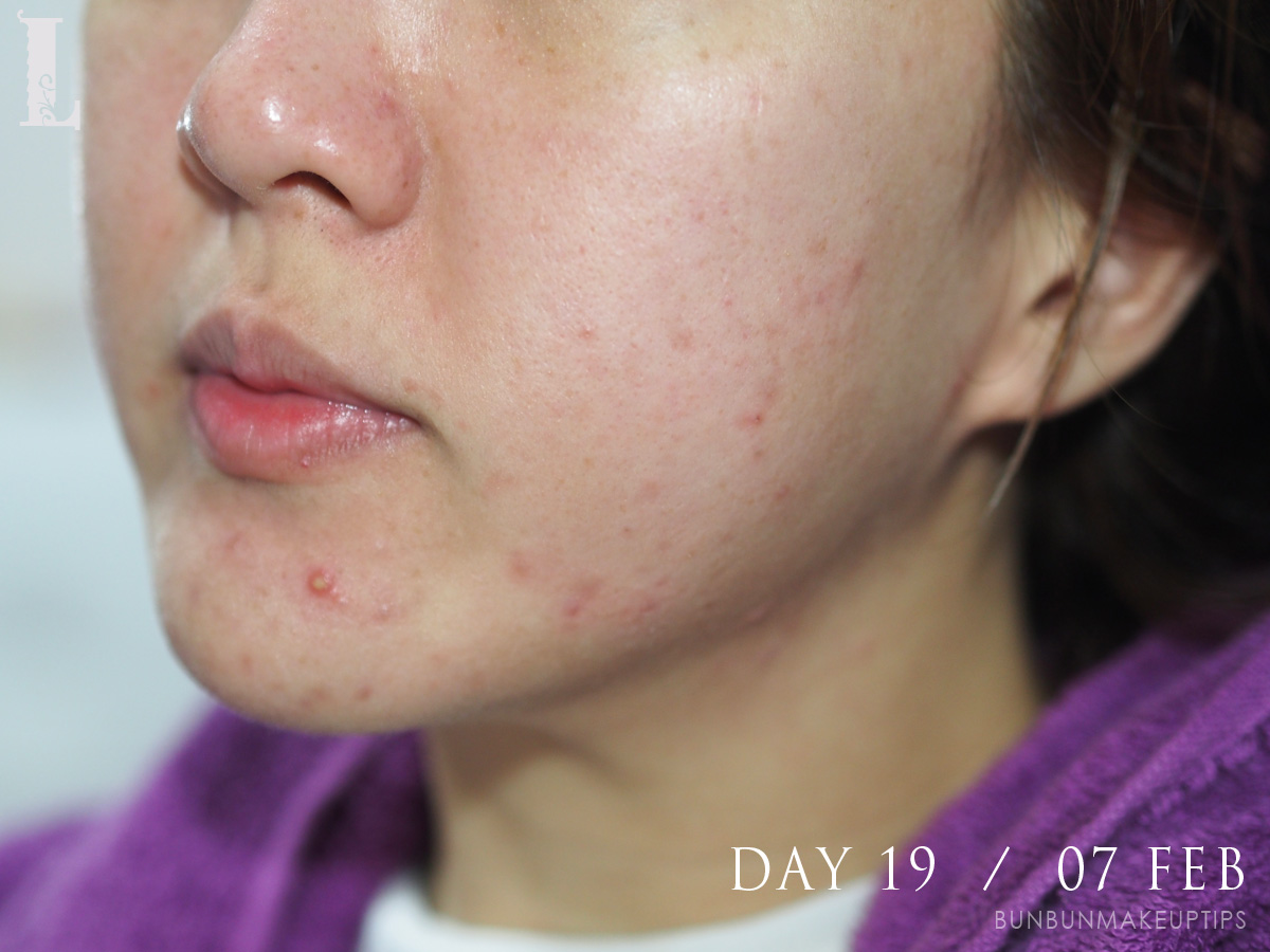 Acne-Treatment-Singapore-Clifford-Clinic-Day-19---07-Feb_2
