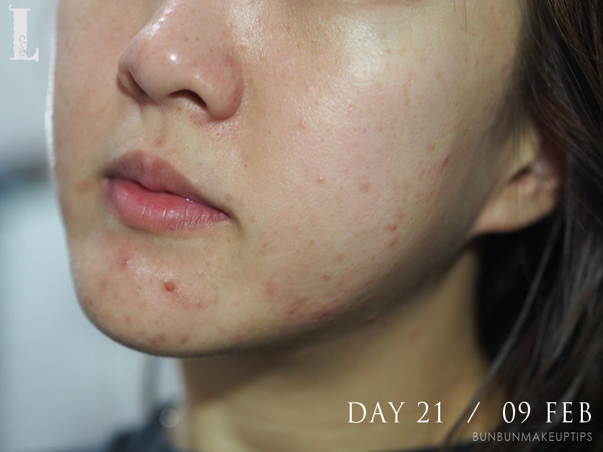 Acne-Treatment-Singapore-Clifford-Clinic-Day-21---09-Feb_1