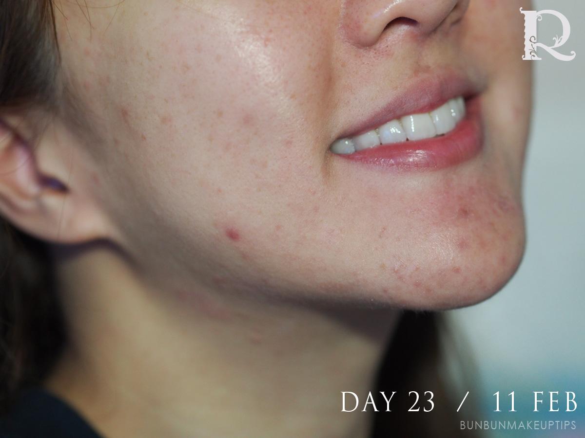 Acne-Treatment-Singapore-Clifford-Clinic-Day-23---11-Feb_1
