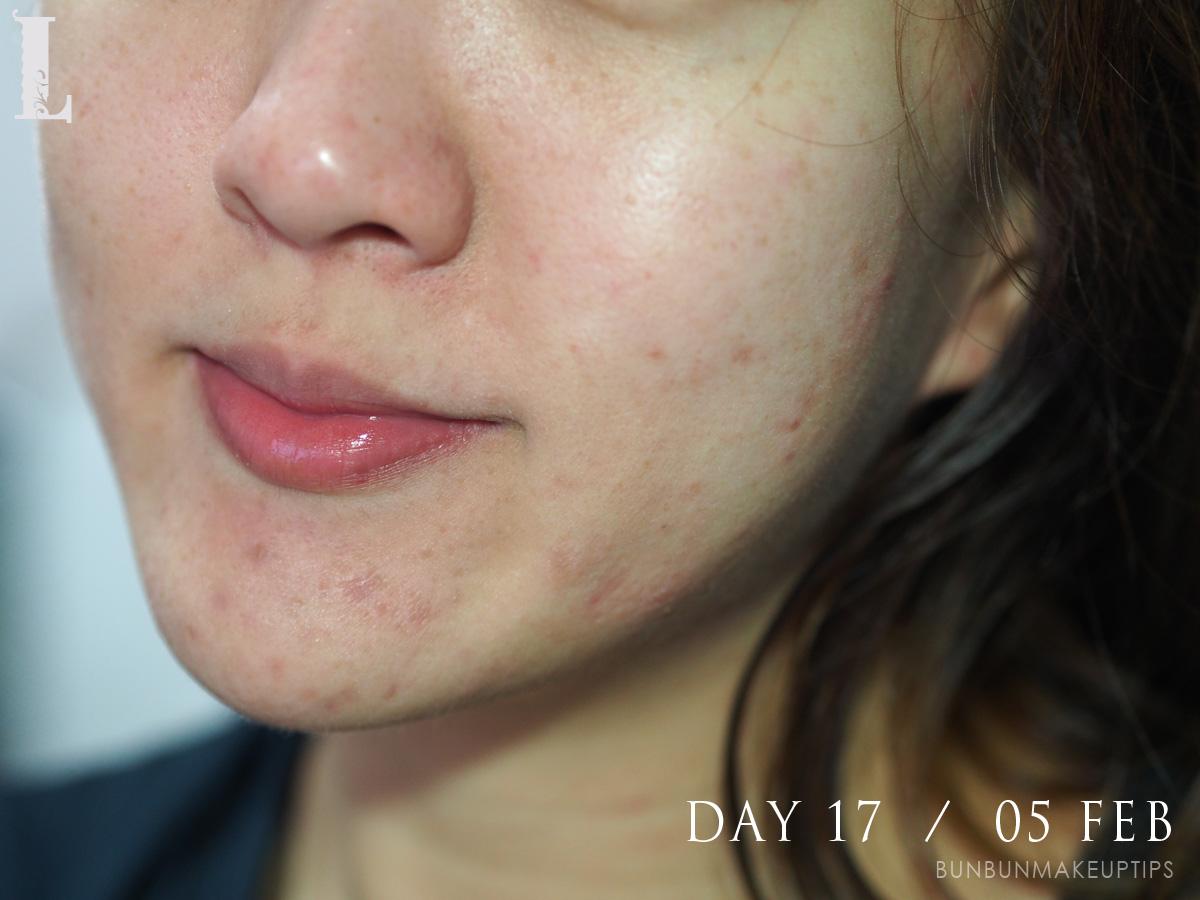 Acne-Treatment-Singapore-Clifford-Clinic-Day-23---11-Feb_2