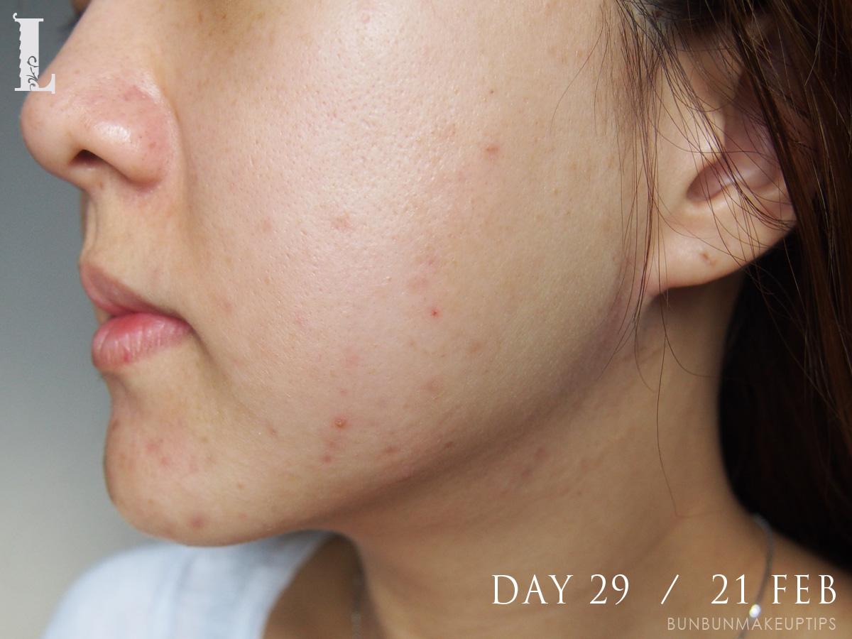 Acne-Treatment-Singapore-Clifford-Clinic-Day-29---21-Feb_1