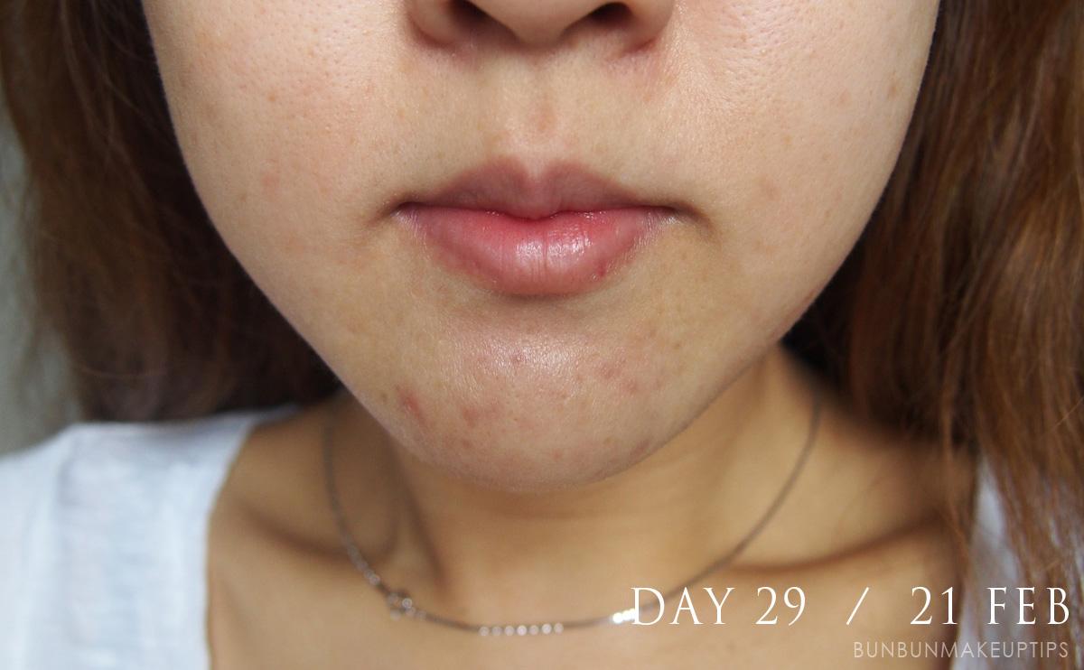 Acne-Treatment-Singapore-Clifford-Clinic-Day-29---21-Feb_2.1