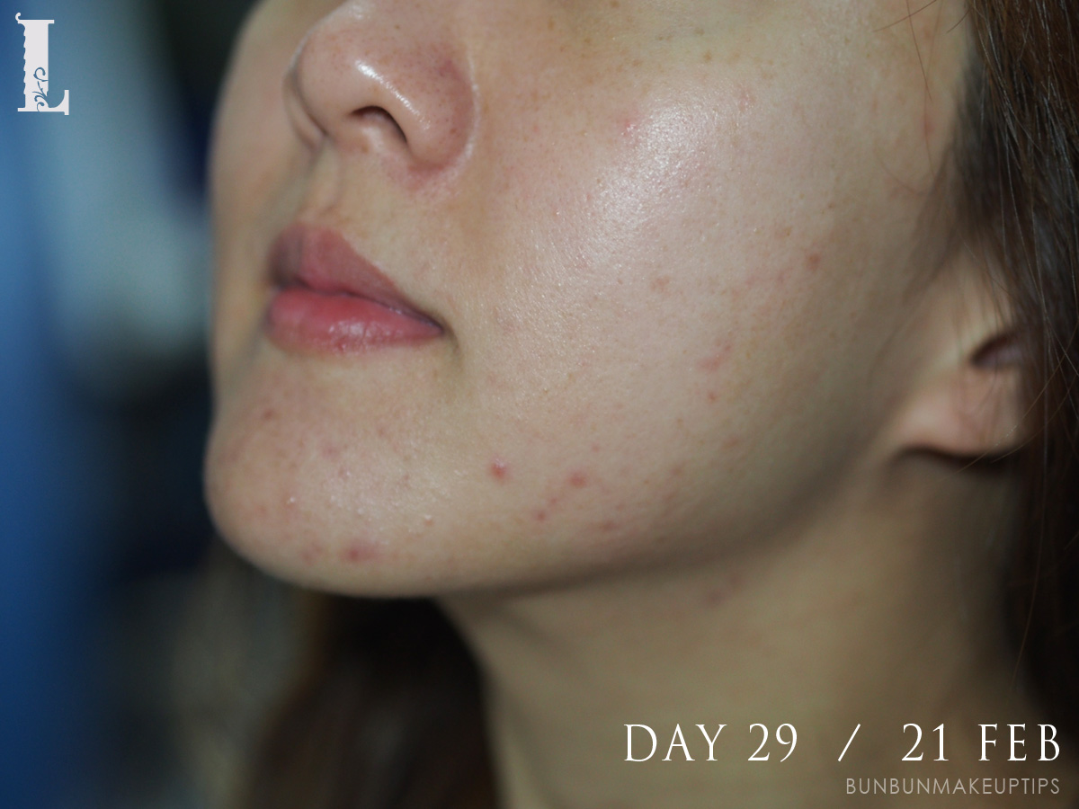 Acne-Treatment-Singapore-Clifford-Clinic-Day-29---21-Feb_3
