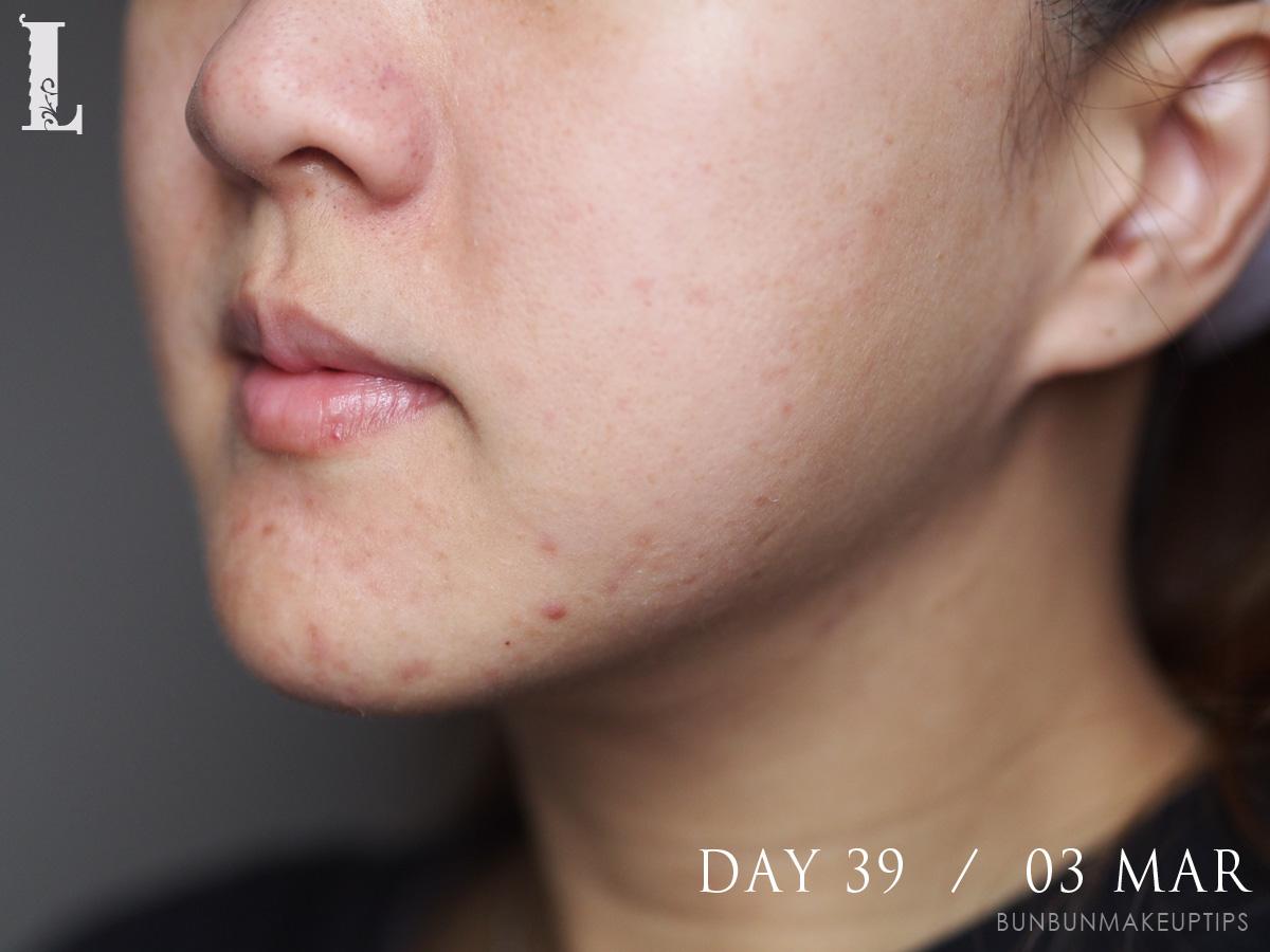 Acne-Treatment-Singapore-Clifford-Clinic-Day-39---03-Mar_1