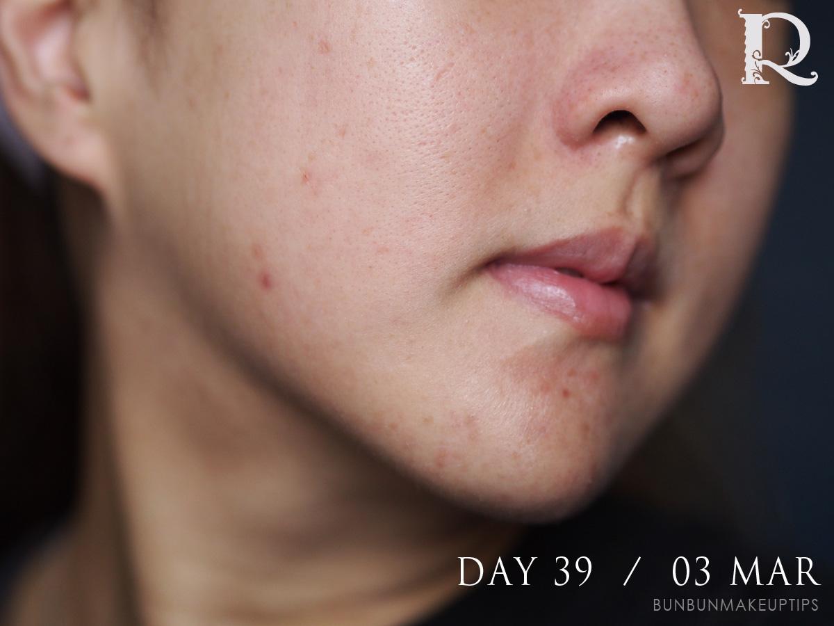 Acne-Treatment-Singapore-Clifford-Clinic-Day-39---03-Mar_2