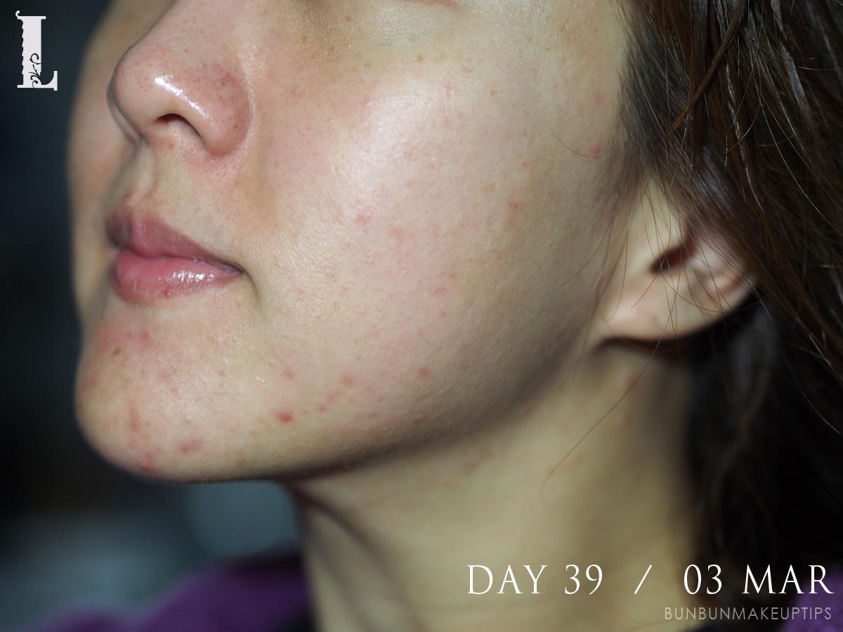 Acne-Treatment-Singapore-Clifford-Clinic-Day-39---03-Mar_3