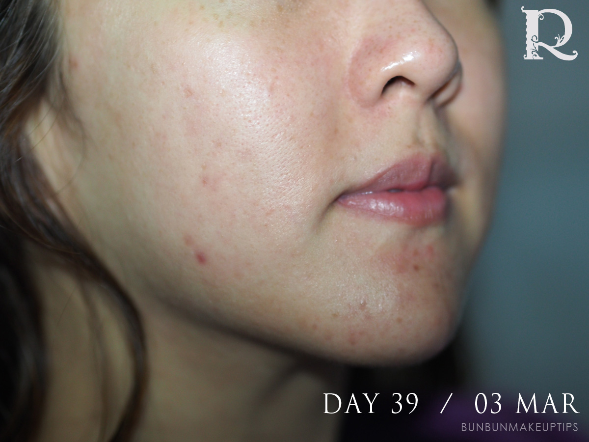 Acne-Treatment-Singapore-Clifford-Clinic-Day-39---03-Mar_4