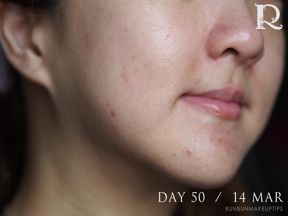 Acne-Treatment-Singapore-Clifford-Clinic-Day-50---14-Mar_1