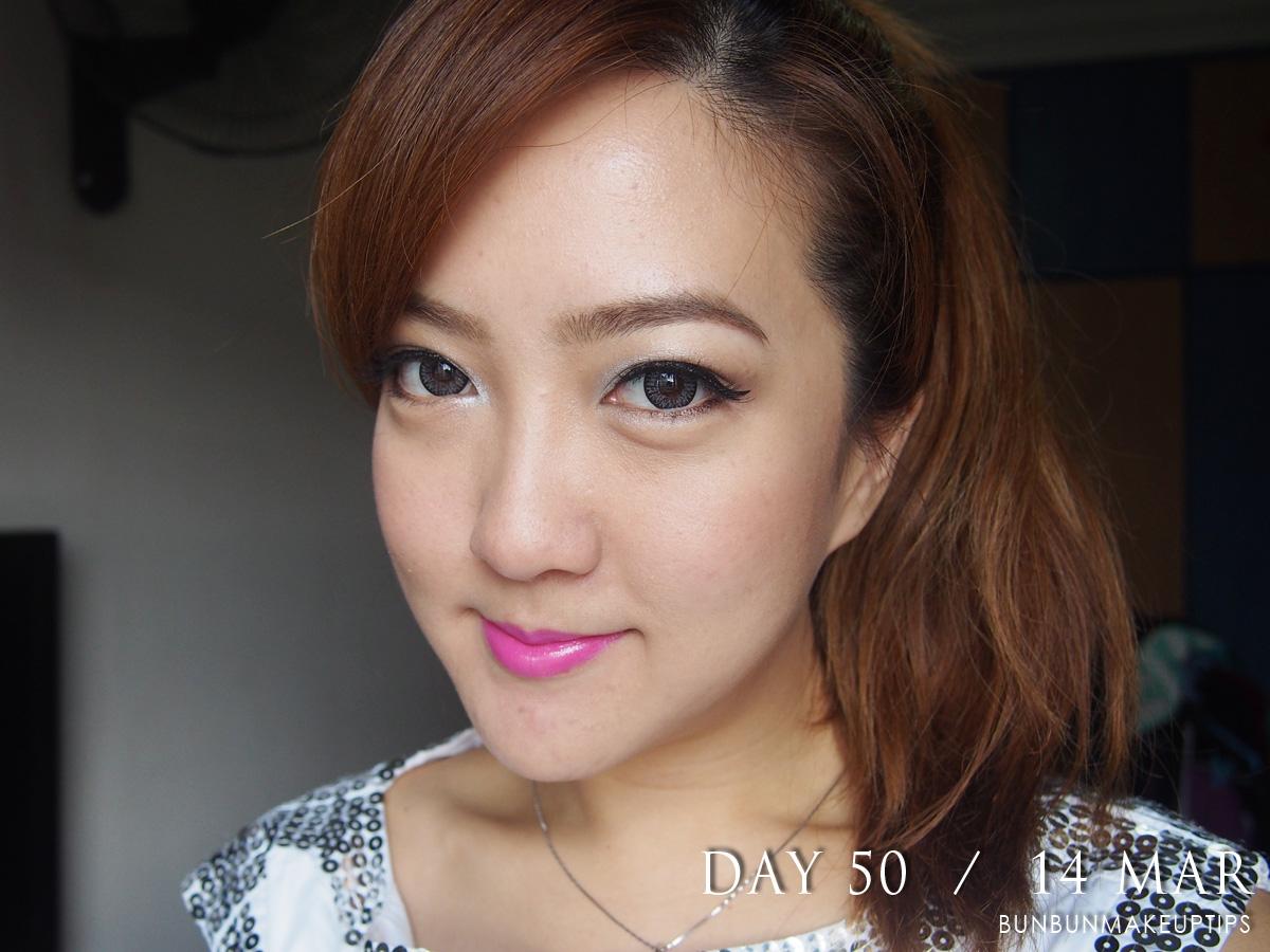 Acne-Treatment-Singapore-Clifford-Clinic-Day-50---14-Mar_2.1