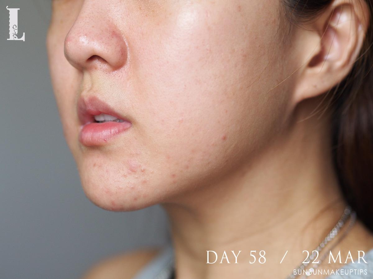 Acne-Treatment-Singapore-Clifford-Clinic-Day-58---22-Mar_1