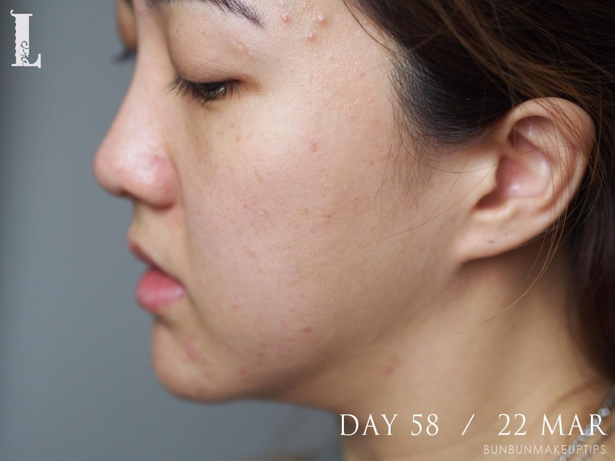 Acne-Treatment-Singapore-Clifford-Clinic-Day-58---22-Mar_2