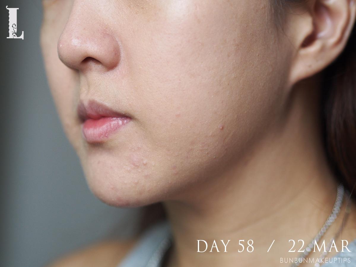 Acne-Treatment-Singapore-Clifford-Clinic-Day-58---22-Mar_3