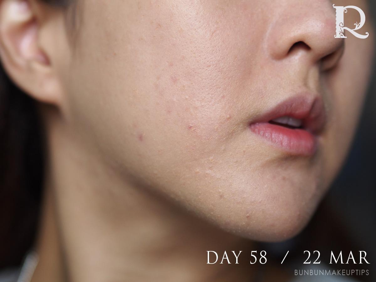 Acne-Treatment-Singapore-Clifford-Clinic-Day-58---22-Mar_4