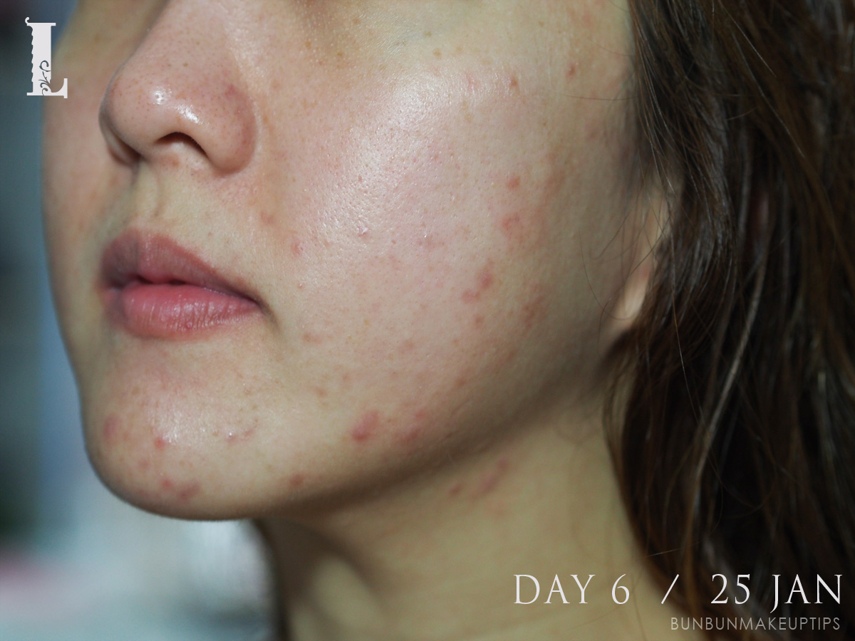 Acne-Treatment-Singapore-Clifford-Clinic-Day-6---25-Jan_1.1