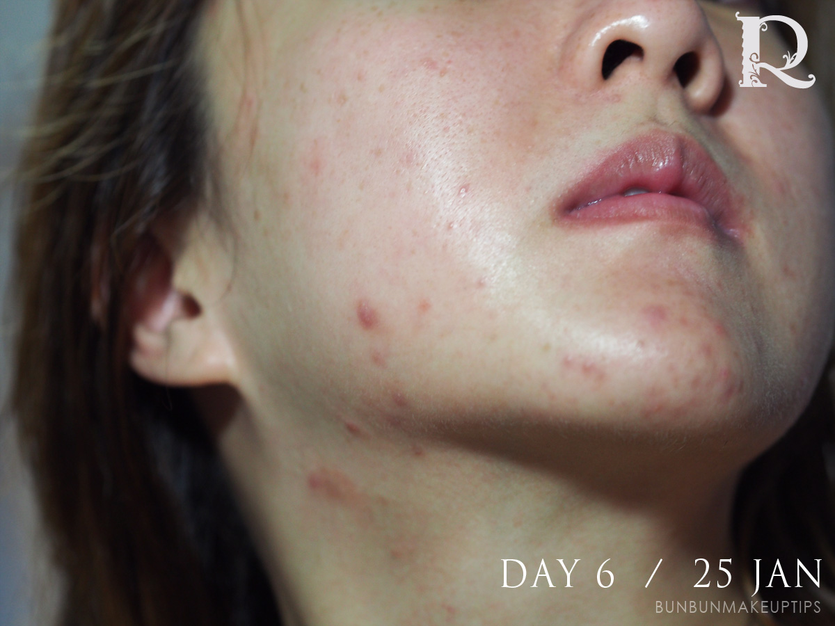 Acne-Treatment-Singapore-Clifford-Clinic-Day-6---25-Jan_2.1