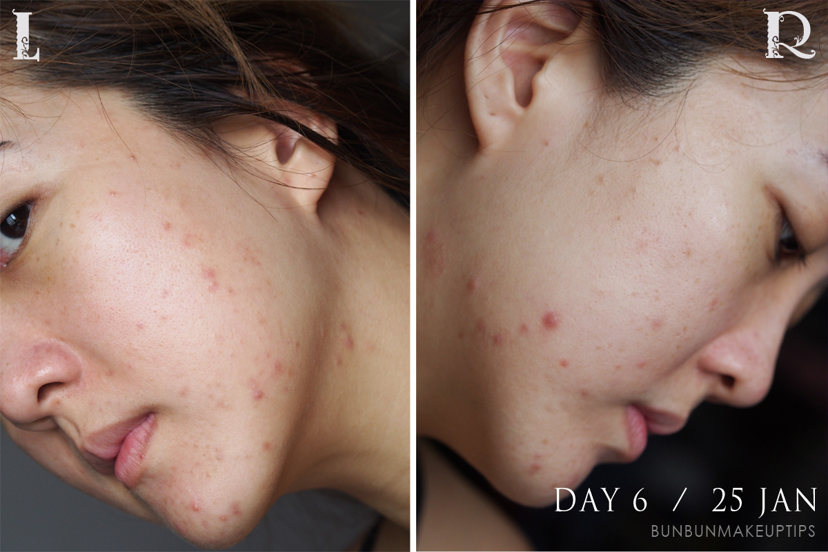 Acne-Treatment-Singapore-Clifford-Clinic-Day-6---25-Jan_3.1