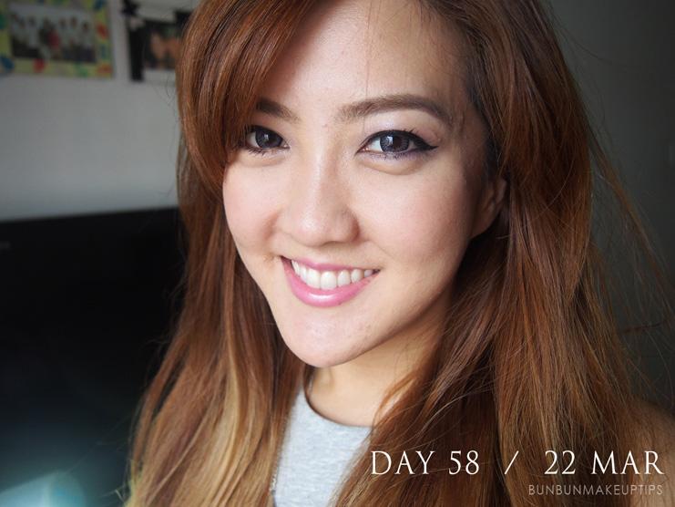 Acne-Treatment-Singapore-Clifford-Clinic-Day-58---22-Mar_5.1