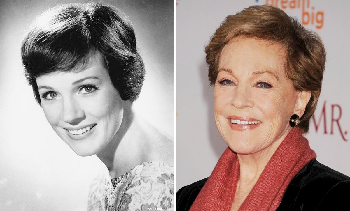 The-Sloane-Clinic-Silhouette-Soft-Review_Julie-Andrews-age-gracefully