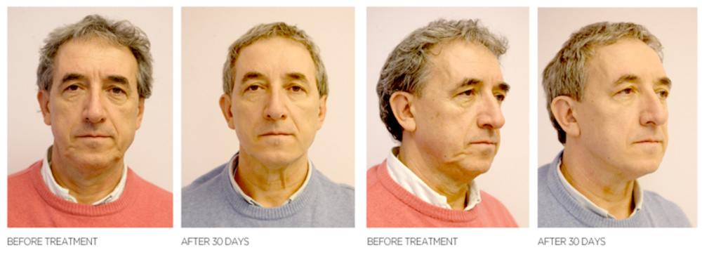 The-Sloane-Clinic-Silhouette-Soft-Review_before-after-comparison