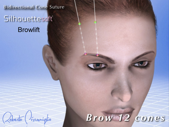 The-Sloane-Clinic-Silhouette-Soft-Review_browlift