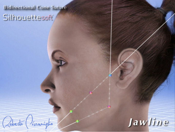The-Sloane-Clinic-Silhouette-Soft-Review_jawline