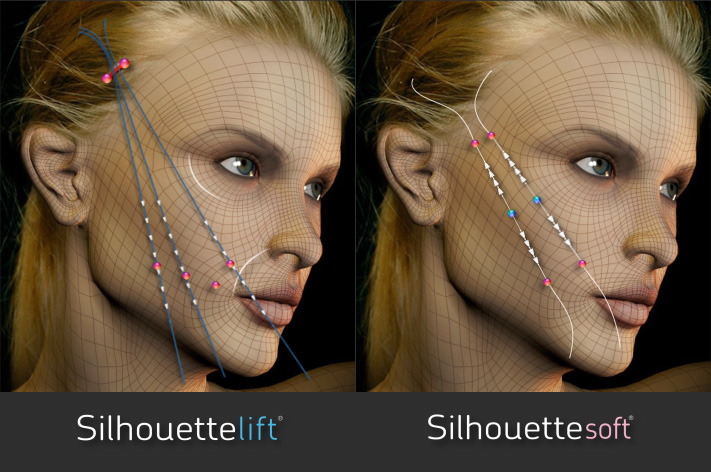 The-Sloane-Clinic-Silhouette-Soft-Silhouette-Lift_Review