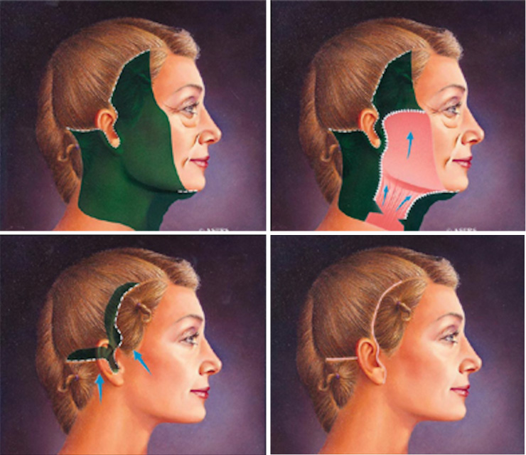 traditional-facelift