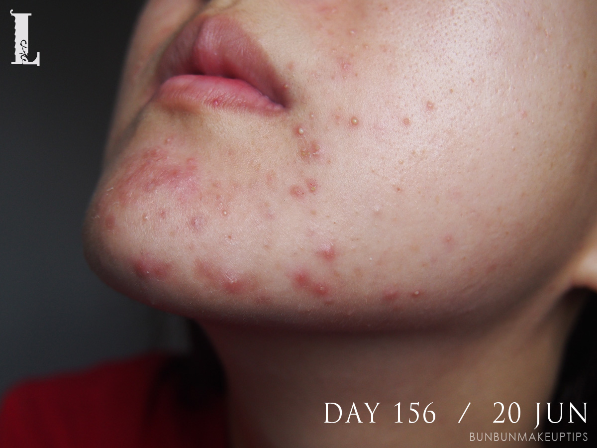Acne-Treatment-Singapore-Day-156---20-Jun