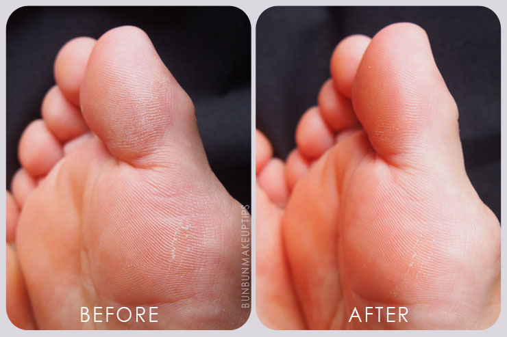 Scholl-Velvet-Smooth-Express-Pedi-Electronic-Foot-File-Review-How-to-use_before-after-comparison