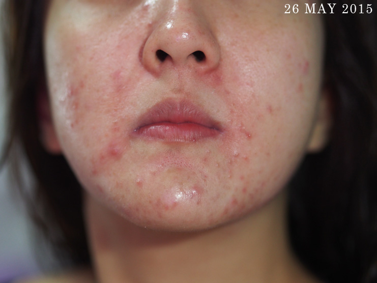 Skin-Life-Post-Facial_Part-2_[05]26May