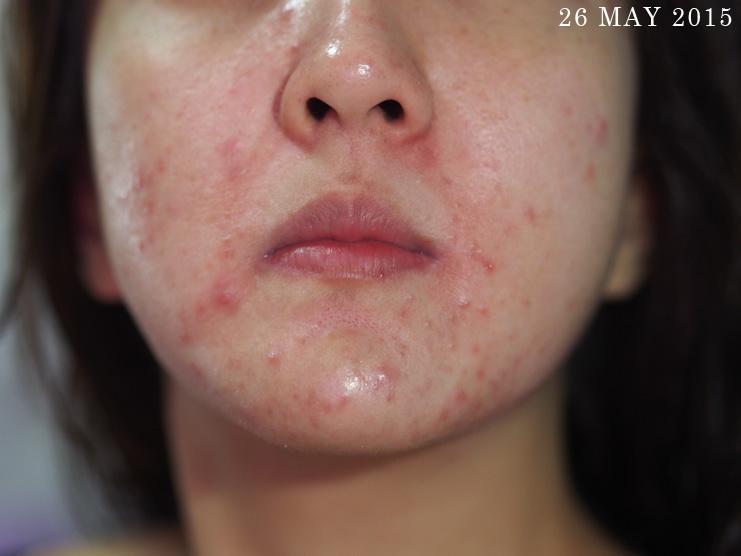 Skin-Life-Post-Facial_Part-2_[05]26May
