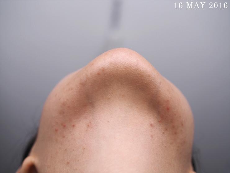 Skin-Life-Post-Facial_Part-2_[1605]16May
