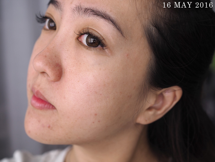 Skin-Life-Post-Facial_Part-2_[1605]16May_2
