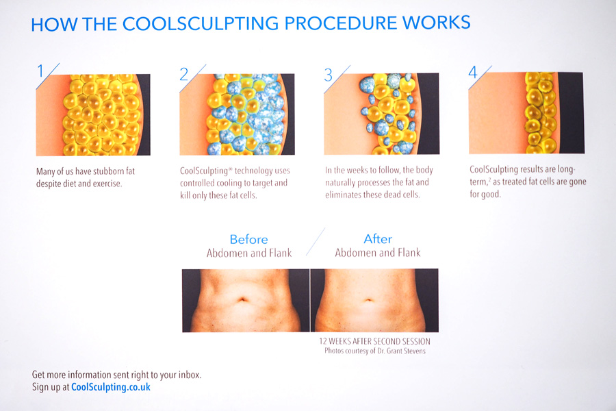 How-Slimming-CoolSculpting-Works_1