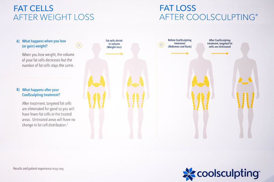 How-Slimming-CoolSculpting-Works_2