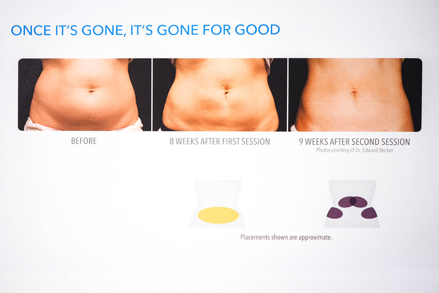 How-Slimming-CoolSculpting-Works_3