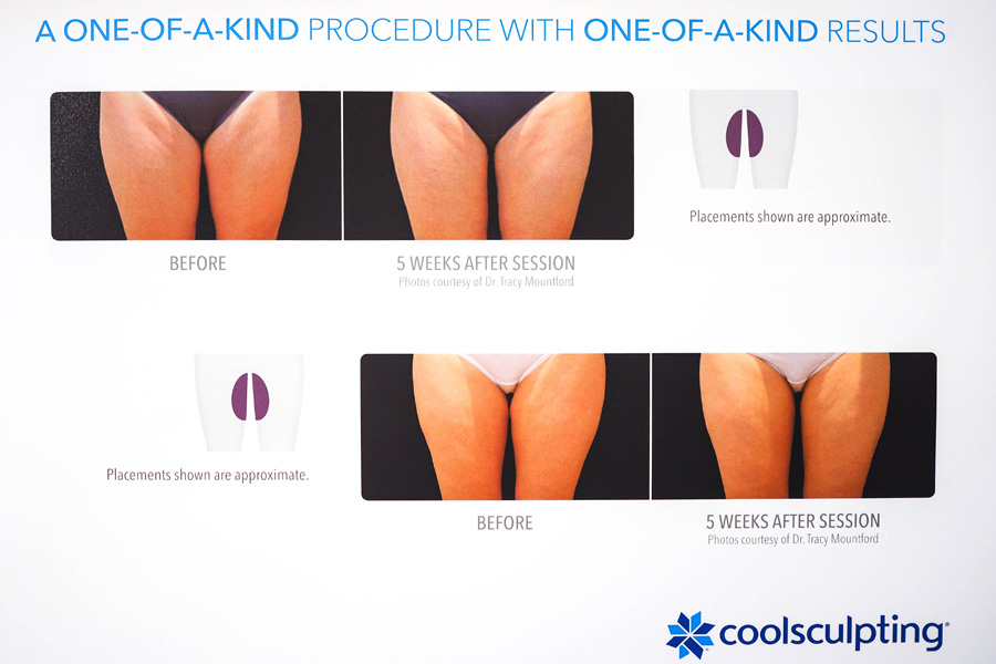 How-Slimming-CoolSculpting-Works_4