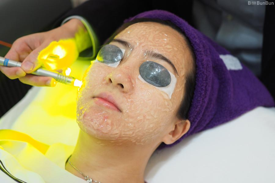 Tricks-For-Acne-Skin_3