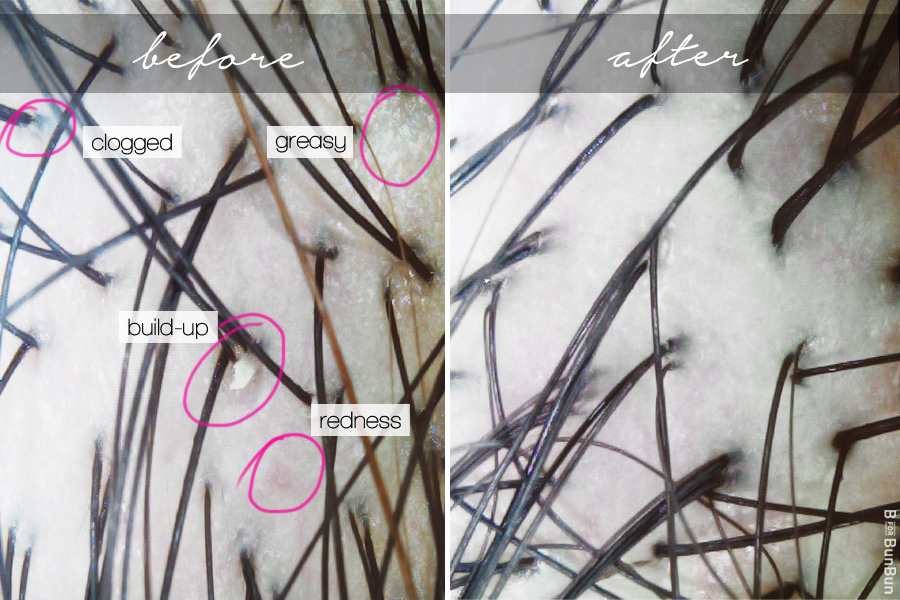 Beijing-101-Tiong-Bahru-Oily-Scalp-Treatment-Review_before-after