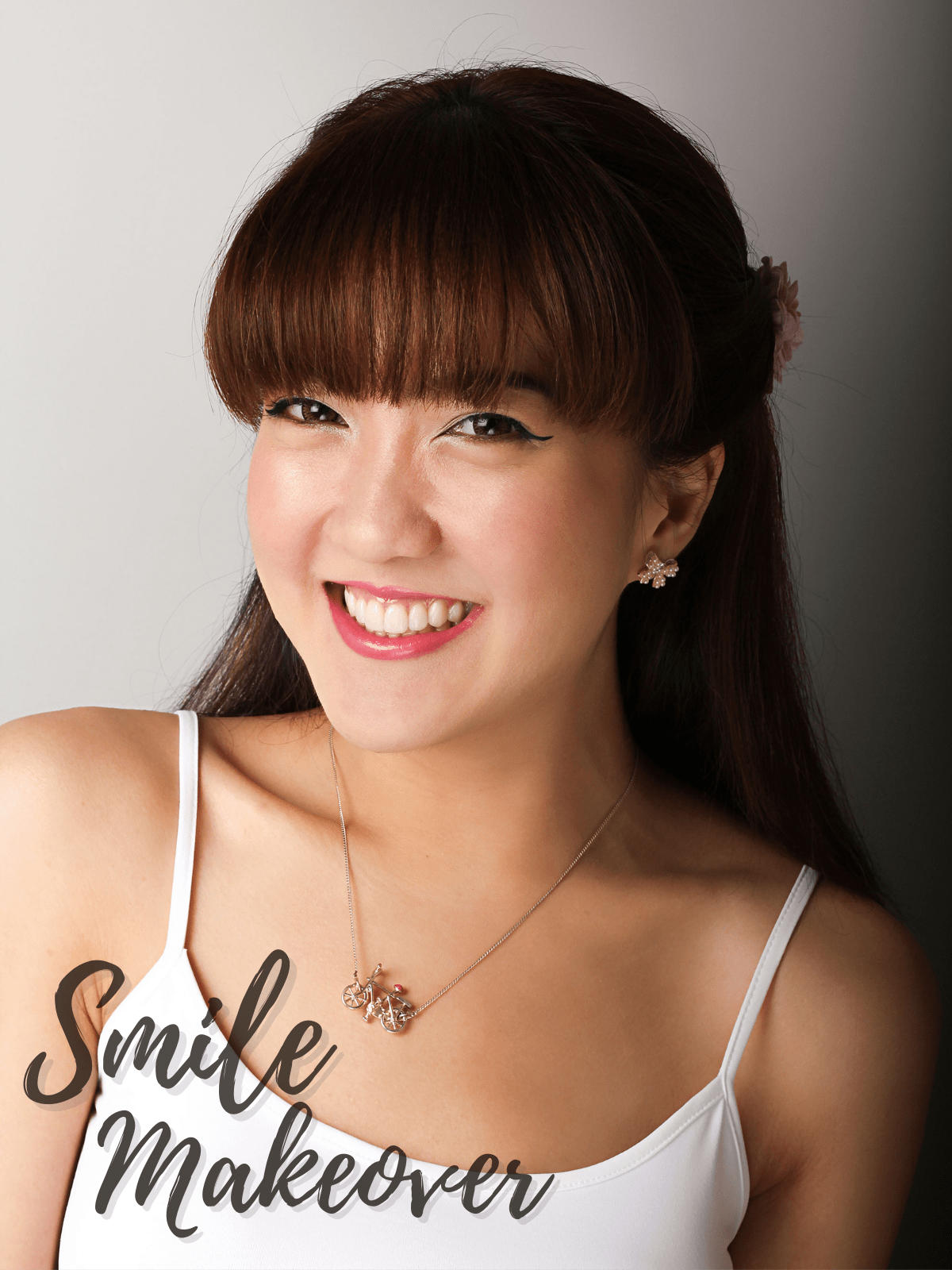 woman smiling showing teeth after smile makeover